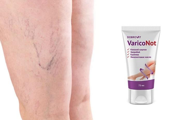 VaricoNot от варикоза в Оленегорске